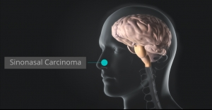 Sinonasal Carinoma Treatment in Orange County by Dr. Louis