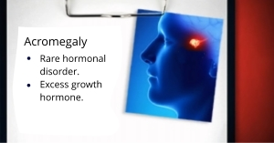 Acromegaly Treatment by Dr. Louis