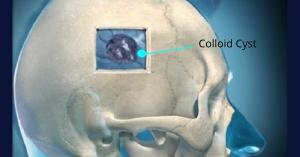 Robert Louis, MD, Colloid Cyst Treatment