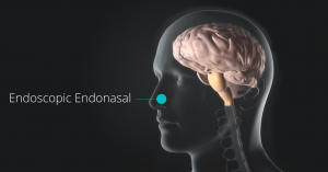 Endoscopic Endonasal approach by Dr. Louis