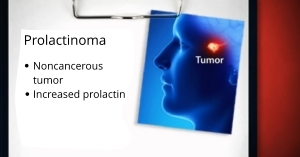 Removal of Prolactinoma by Orange Count neurosurgeon, Dr. Louis