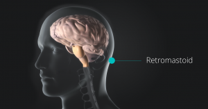 Retromastoid Approach performed by Dr. Louis