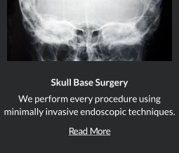 Skull Base Surgery in Orange County