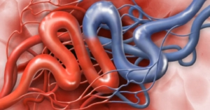 Treating Glossopharyngeal Neuraligia in Orange County