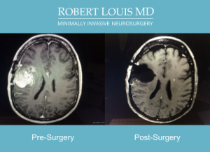 Robert Louis MD - Successful Brain Tumor Removal