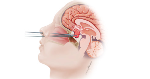 Endoscopic Transsphenoidal Surgery in Orange County